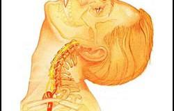 Лечение на остеохондроза