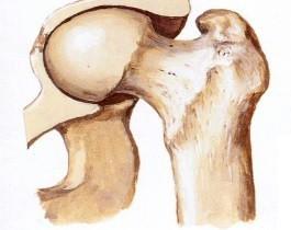 Какви са причините за болките в ставите?